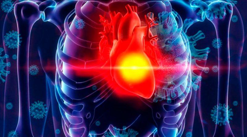 Estudio muestra que la mayoría de pacientes recuperados de Covid-19 quedaría con problemas cardíacos