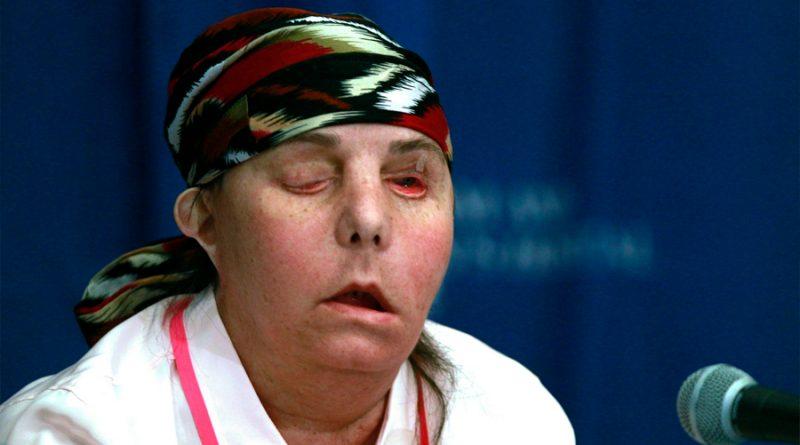 Realizan segundo trasplante de cara a una mujer en EU