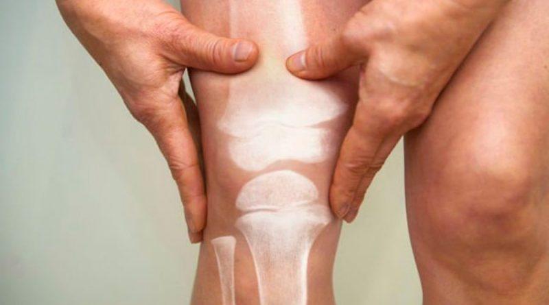 Artritis: descubren cómo hacer crecer cartílago en las articulaciones