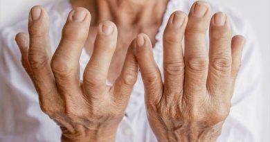 Una molécula creada en laboratorio muestra resultados positivos en el tratamiento de la artritis