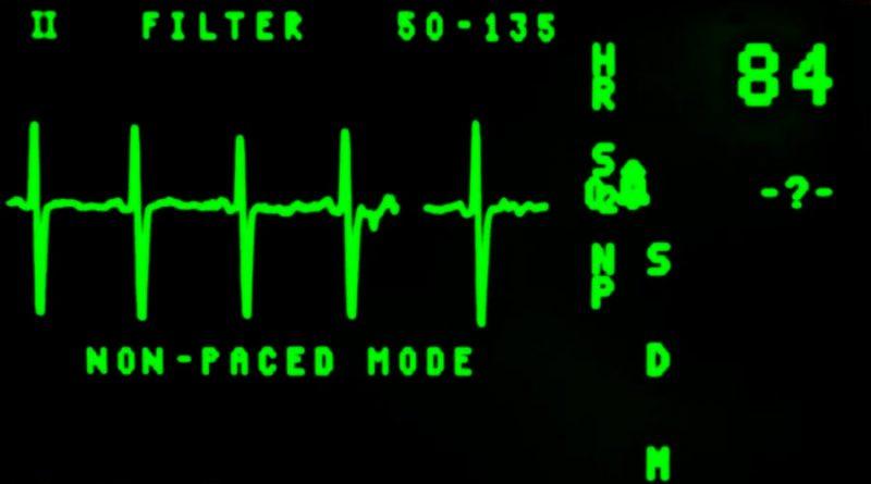 Estudiante del IPN desarrolla sistema para detectar fallas cardíacas