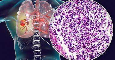 Identifican molécula siniestra que ayuda a sobrevivir a las células de cáncer