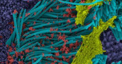 "Logran una ""foto"" microscópica de una célula infectada por el coronavirus"