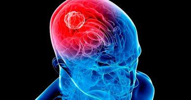 Localizan área cerebral donde los tumores se esconden de las quimioterapias