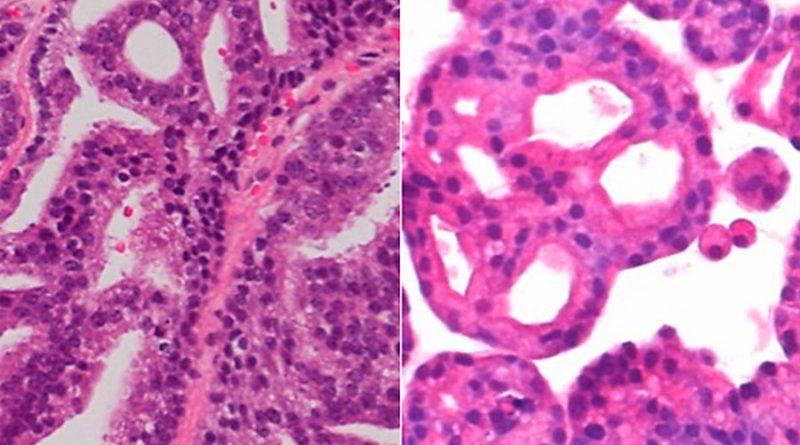 Organoides de nueva generación crecen y funcionan como tejidos reales