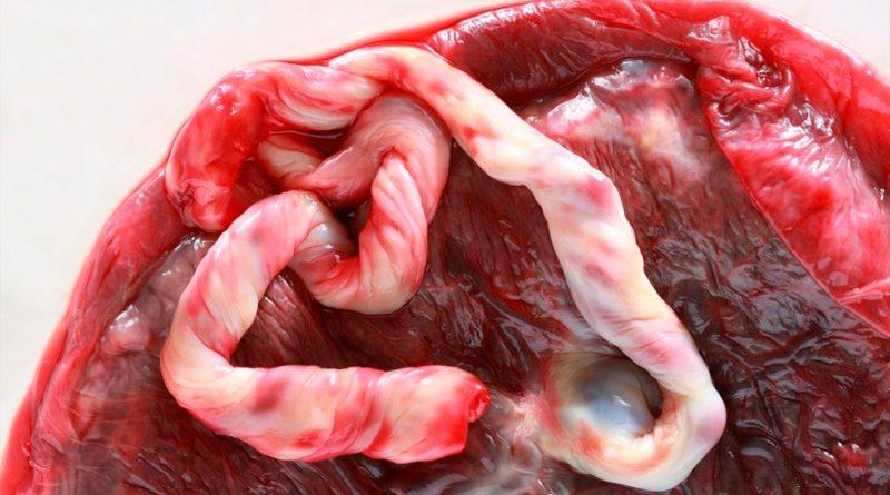 Avanza una investigación con células madre de cordón umbilical para tratar niños con autismo