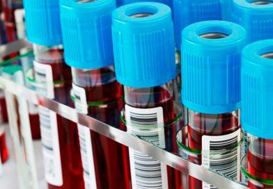 Un análisis de sangre detectaría cuáles son las personas con mayor o menor riesgo de morir por covid-19