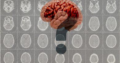 Descubren una nueva y rara forma genética de demencia