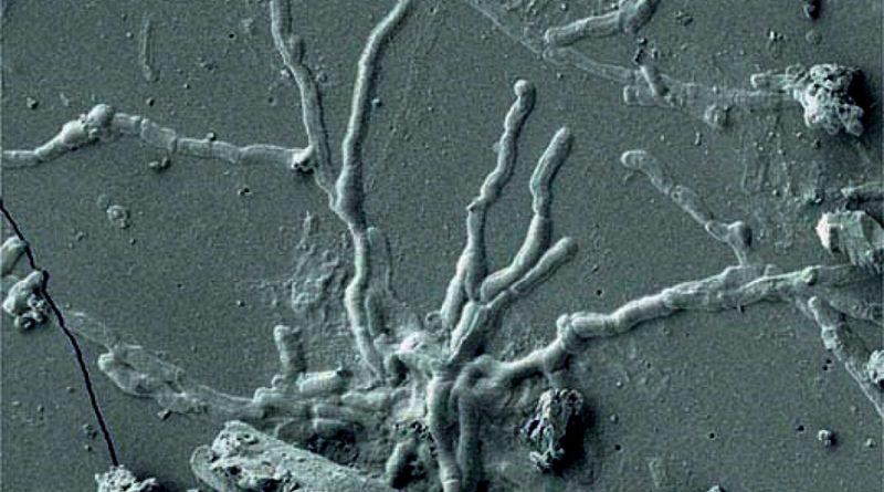 Científicos descubren neuronas vitrificadas de una víctima del Vesubio hace 2,000 años