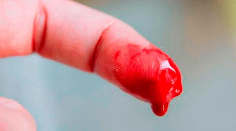 Tratamientos innovadores ayudan a evitar sangrados en pacientes con hemofilia