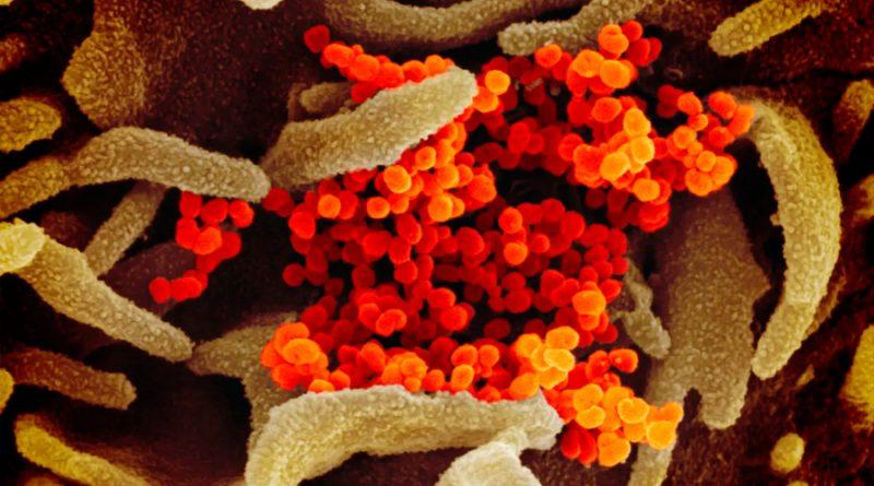 Registrada la primera muerte causada por reinfección de coronavirus