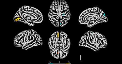 Comprueban que el SARS-CoV-2 afecta al cerebro y detallan efectos en neuronas
