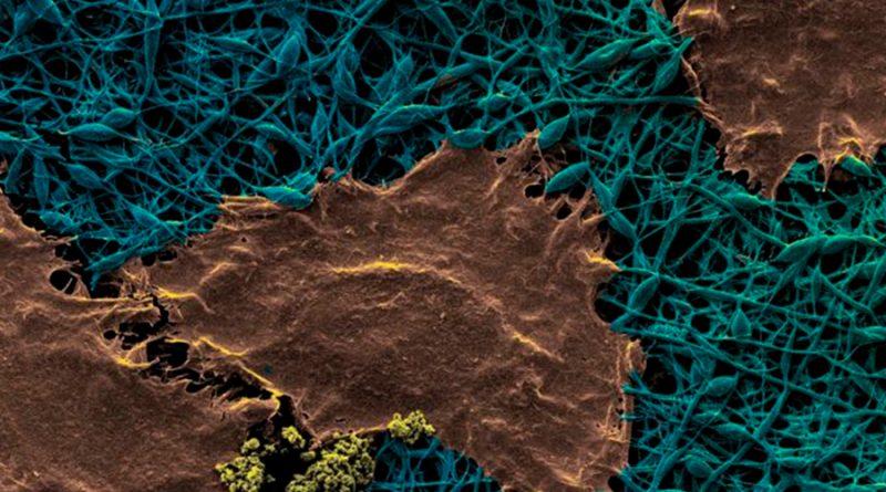 Crean apósito inteligente con nanodiamantes que mejoran la cicatrización de las heridas
