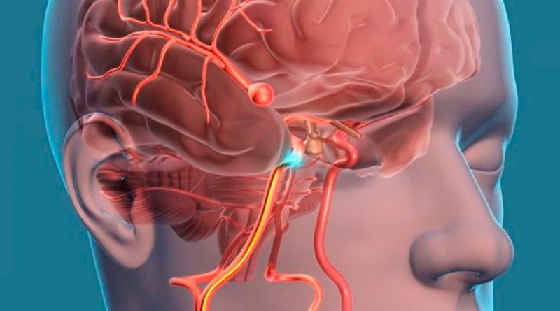 """Científicos imprimen aneurisma """"vivo"""" hecho con células humanas"""
