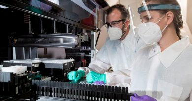 Lanzan prueba sanguínea para diagnosticar alzhéimer