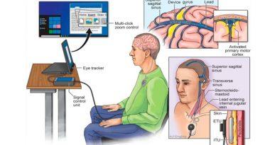 Crean chip cerebral que permite a pacientes de ELA enviar correos electrónicos y accionar vía Internet