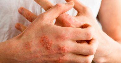 ¿Piel seca, manchas o ronchas? Covid-19 también puede afectar la piel, alerta la UNAM