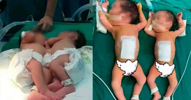 Logran separar a dos gemelas de un día unidas por el estómago y que compartían el cordón umbilical