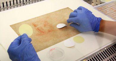 Hongos, bacterias y ADN humano en los dibujos de Leonardo Da Vinci
