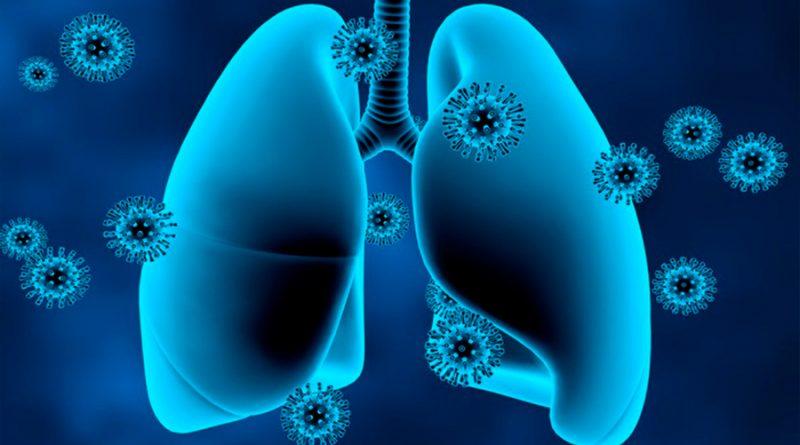La mayoría de los pulmones se recuperan bien tres meses después del COVID-19