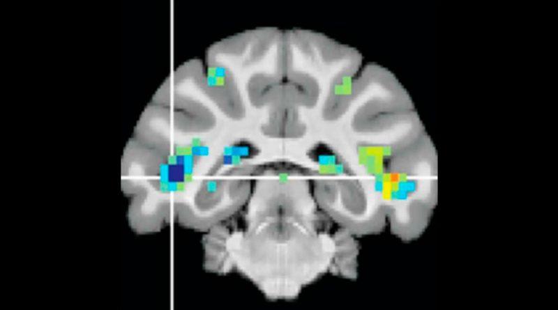 Descubren una región cerebral crucial para reconocer sucesos visualmente