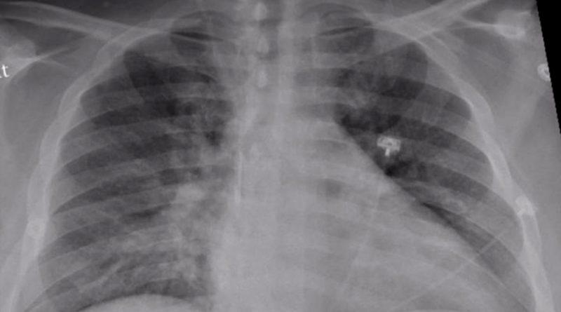 Por qué la neumonía por COVID-19 dura más y causa mayor daño que la habitual