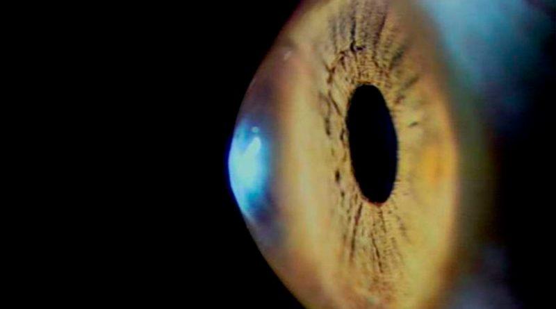 Científicos dan un paso importante hacia el uso de trasplantes de células de retina para tratar la ceguera