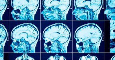 Identifican una nueva vía celular que limita el crecimiento y la propagación de tumores cerebrales