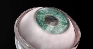 Incorporan con éxito un implante de córnea totalmente artificial en un humano