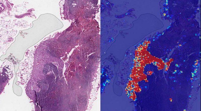 IA podría ayudar a detectar el cáncer de mama antes de que aparezca un tumor