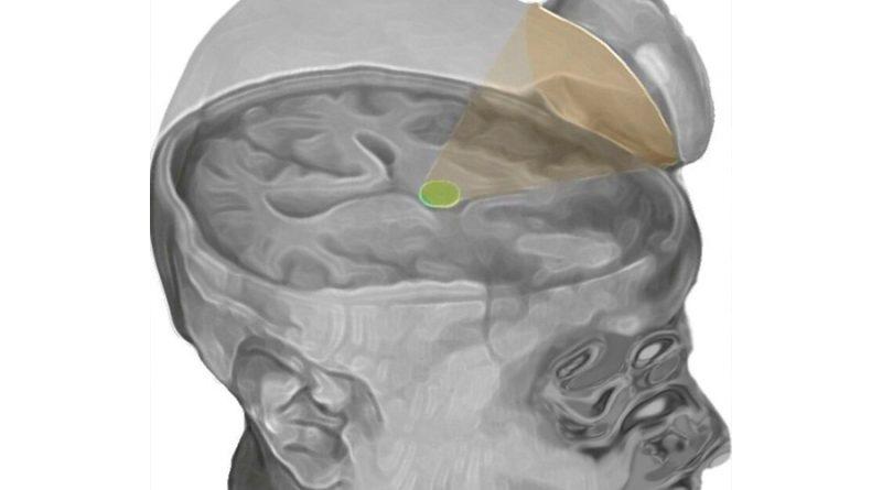 Recuperan con ultrasonido el cerebro de dos personas en coma