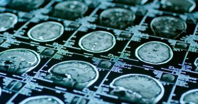 Hallan el punto desde donde el cerebro controla el sistema inmunológico