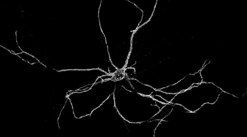 Un zoom sobre las neuronas descubre una cadena cerebral de luces