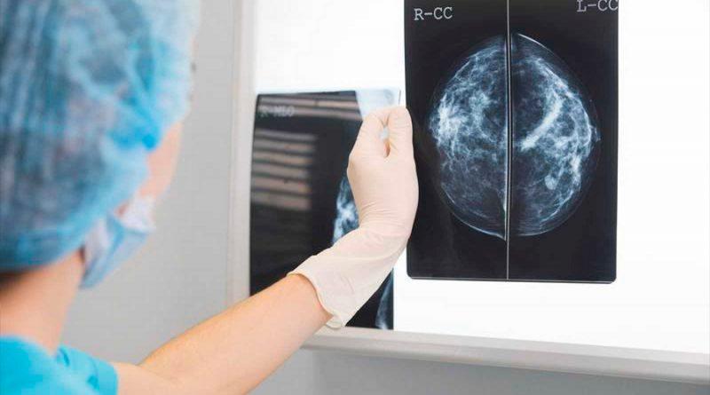 El cáncer de mama es ya el tumor más frecuente en el mundo