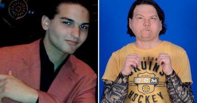 Víctima de accidente de coche recibe primer trasplante de cara y manos en EU