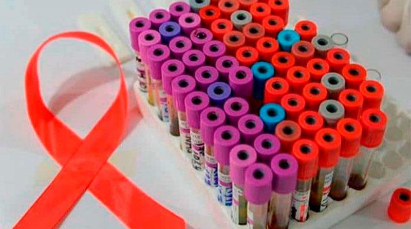 """Células """"asesinas"""" activadas por nanopartículas ayudan a eliminar el VIH"""