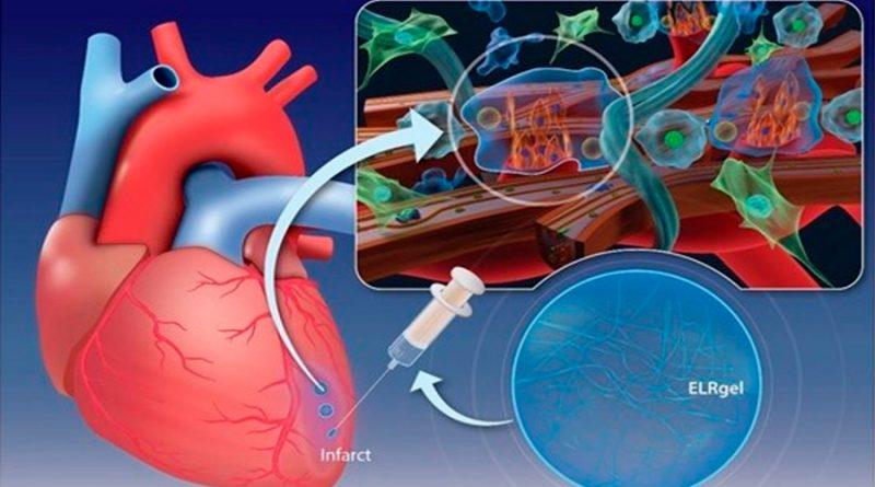 Crean un hidrogel que regenera el tejido cardíaco tras un infarto