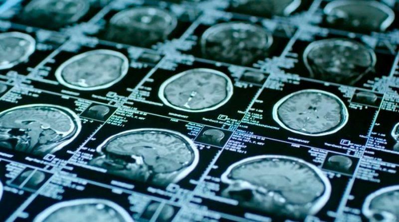 Descubren cómo reactivar las células madre envejecidas en el cerebro