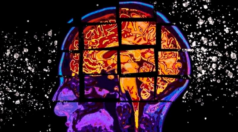 Crean una IA que identifica fármacos ya aprobados que pueden ser útiles contra el Alzheimer