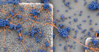 Revelan la estrategia que siguen las neuronas para tender conexiones entre ellas