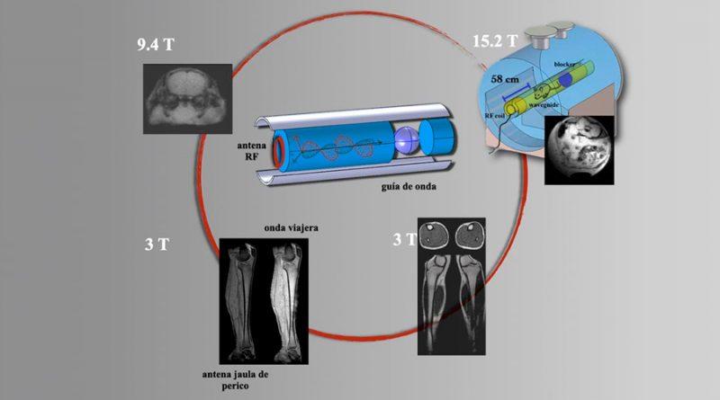 Diseñan en la UNAM nueva tecnología para lograr mejores imágenes por resonancia magnética