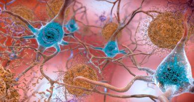 Identifican un fármaco que reduce o elimina las placas amiloides de la enfermedad de Alzheimer