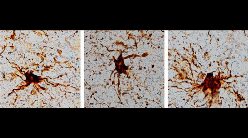Hay genes en el cerebro que sobreviven a la muerte