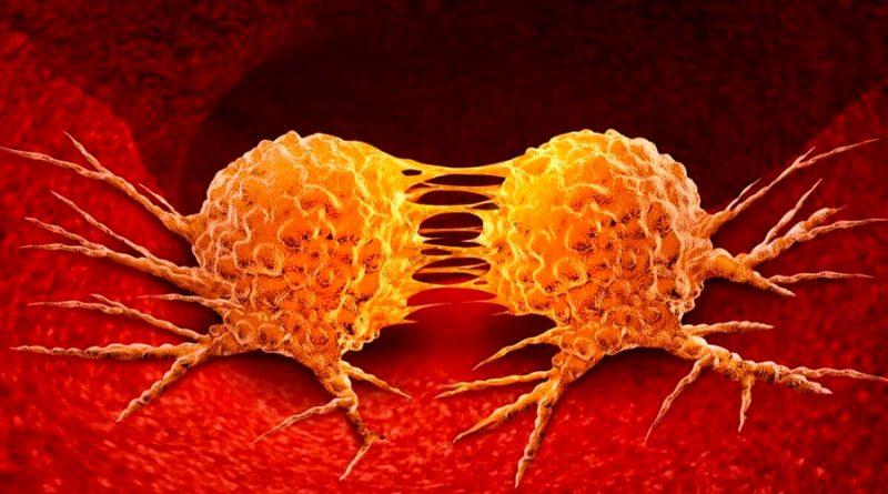 Crean células inmunes que actúan contra el cáncer metastásico