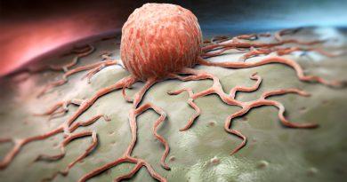 Científicos israelíes descubren forma de bloquear propagación de cáncer de cerebro