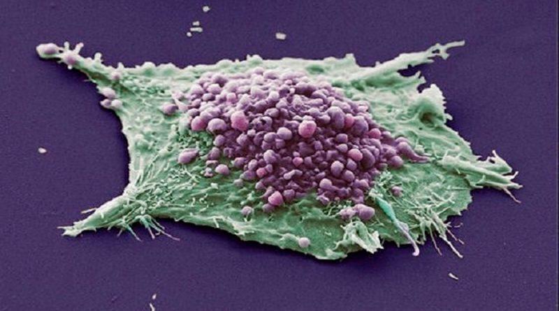 Científicos descubren proteína que promueve el crecimiento del cáncer del pulmón