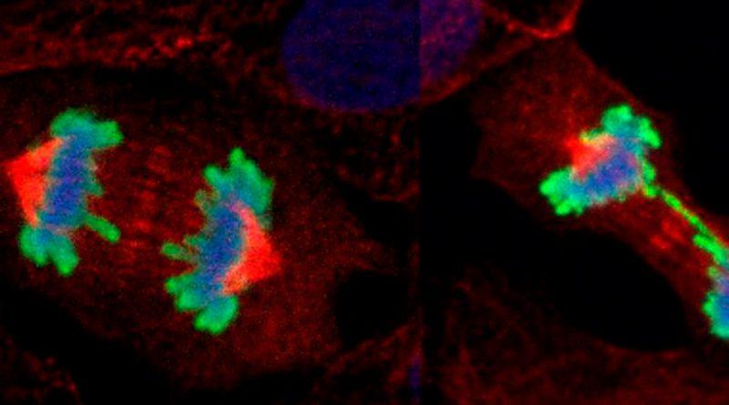 Descubren cómo proliferan los tumores y proponen nuevas terapias