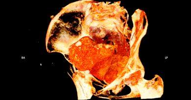 Científicos anuncian descubrimiento de momia egipcia con un feto en su útero