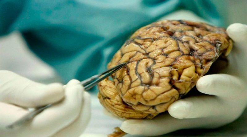 Covid-19 reduce el volumen de materia gris en el cerebro, según estudio