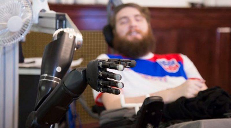 Como si fuera tu propia mano: el brazo robótico con emociones